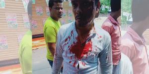 SafeValue must use [property]=binding: হাওড়ার ১৭৫ নং বুথে ভোটারের মাথা ফাটানোর অভিযোগ কেন্দ্রীয় বাহিনীর বিরুদ্ধে (see http://g.co/ng/security#xss)